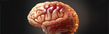 $29M Verdict 3D Mapping Brain Damage